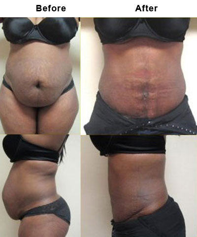 ... so glad its part of my daily routine. before after weight loss photos