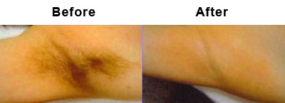 Small hair laser removal chicago upper lip laser hair for Cheap tattoo removal chicago