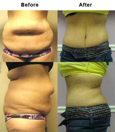 Tummy Tuck Patients are More Fit Chicago, Tummy Tuck